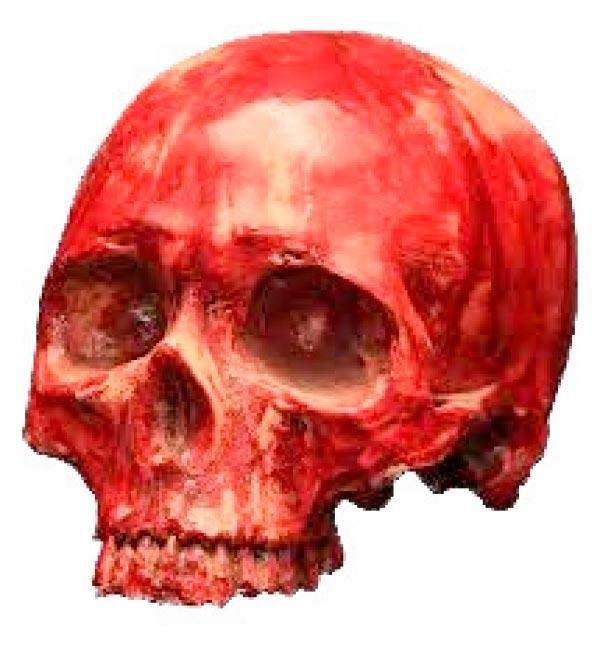 cranio3 Figura do Slideshow #11